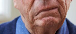 Apakah penyakit stroke bisa sembuh total