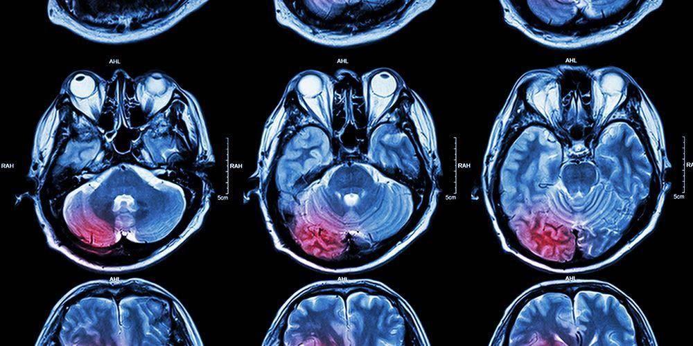 bahaya mana stroke kiri atau kanan