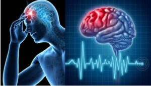 cara penyembuhan stroke serangan kedua